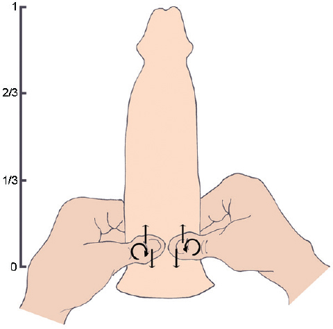 Figure 1: Diagram of regular PRM: the PRM was performed by placing the thumb (one hand) or thumbs (two hands) on the root of the penis (no more than 1/3 of the erect penis) and rubbing the penile root up and down (straight arrow) or circularly (curve arrow) with a certain degree of friction. PRM: penis-root masturbation.