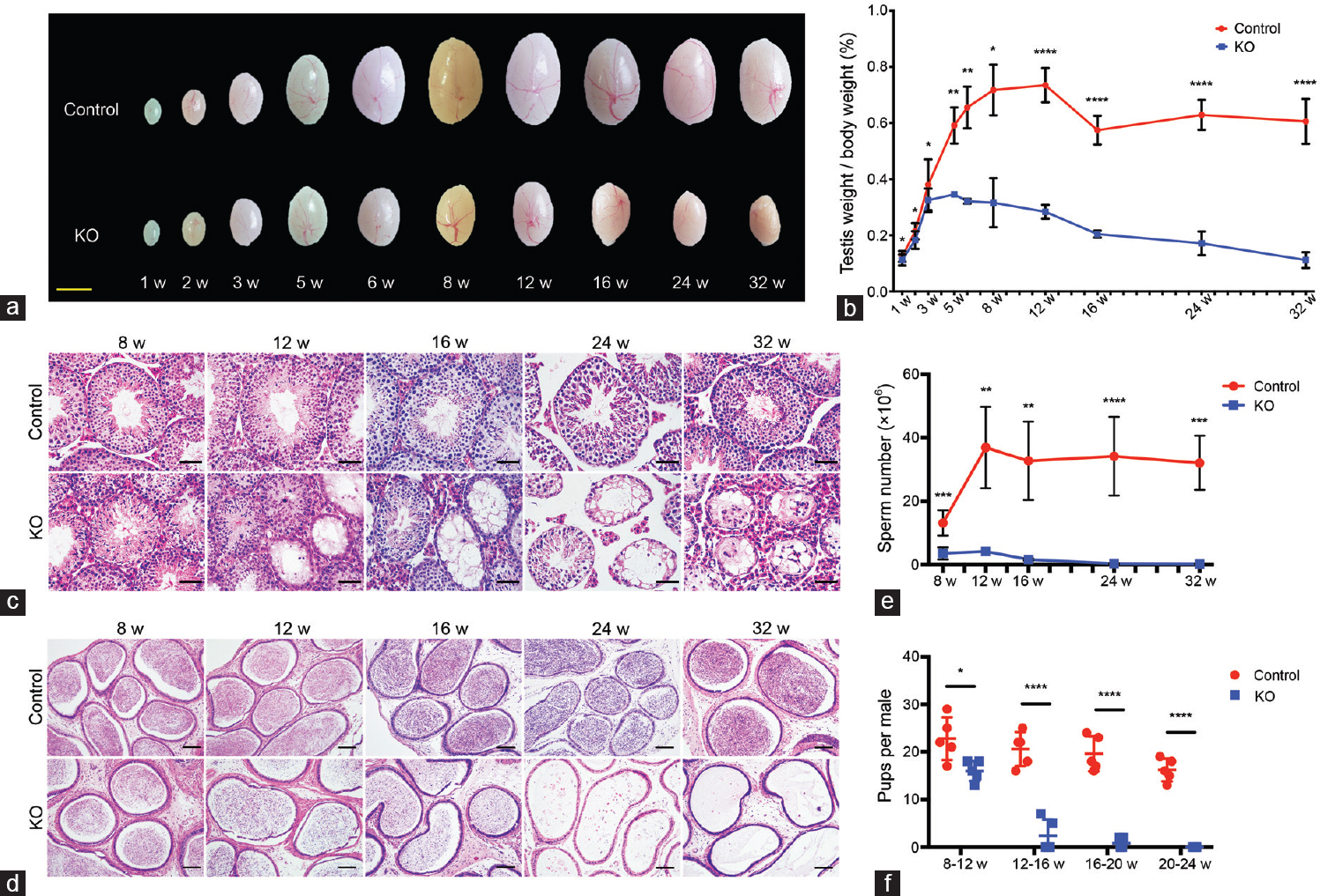 Figure 2: <i>Mtor</i> KO mice progressively lose their germ cells and fertility with age. (a) Representative images of testes from control and <i>Mtor</i> KO mice aged from 1 to 32 weeks old. Scale bar = 3mm. (b) Quantification of testis weight to body weight ratios of control and <i>Mtor</i> KO mice at different ages. (c) Representative images of H and E-stained testicular sections of control and <i>Mtor</i> KO mice aged from 8 weeks to 32 weeks old. Scale bars = 50 μm. (d) Representative images of H and E-stained cauda epididymal sections of control and <i>Mtor</i> KO mice at different ages. Scale bars = 100 μm. (e) Quantification of spermatozoa collected from the cauda epididymidis of control and <i>Mtor</i> KO mice at different ages. (f) Statistical analysis of the fertility of control and <i>Mtor</i> KO male mice at distinct age intervals. H and E: hematoxylin and eosin.<sup>*</sup><i>P</i> < 0.05;<sup>**</sup><i>P</i> < 0.01;<sup>***</sup><i>P</i> < 0.001;<sup>****</sup><i>P</i> < 0.0001.