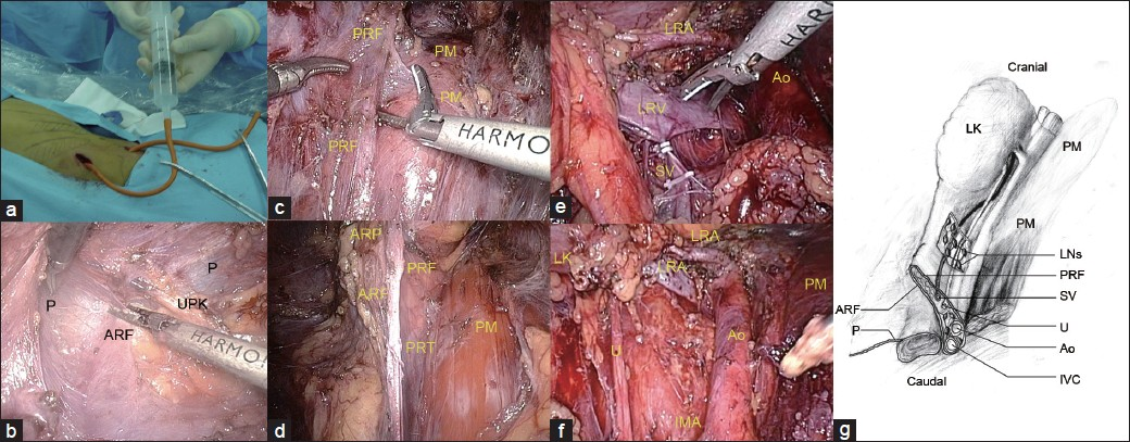 Anatomical retroperitoneoscopic retroperitoneal lymph node ...