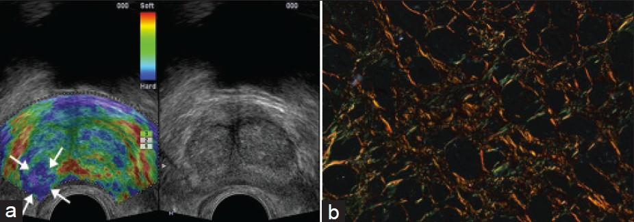 Figure 2: Elastography of benign prostatic hyperplasia (stiff lesion). (<b>a</b>) No obvious lesion was found in the peripheral zone of the prostate by TRUS (right image), but a local blue area appeared in the right peripheral zone of the prostate by TRTE (left image, white arrow). (<b>b</b>) The section stained with picric acid-sirius red showed that Col1 and Col3 were cross-linked in distribution. The collagen volume fraction of Col1 (0.04) was greater than that of Col3 (0.01). TRTE: Transrectal Real-Time Tissue Elastography; TRUS: Transrectal Ultrasonography.