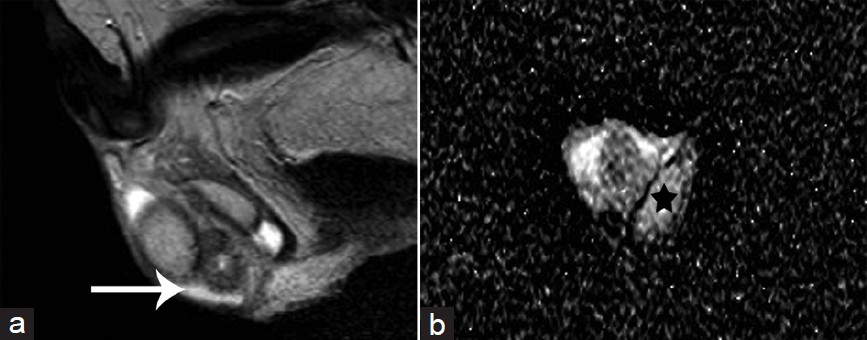Figure 4: Right epididymo-orchitis in a 79-year-old man. ( <b>a</b> ) Sagittal T2-weighted image depicts enlargement and hypointensity of the right epididymal tail (arrow). ( <b>b</b> ) Transverse DW image (b = 900 s mm−2). The ADC values of the normal contralateral testis (asterisk) were 1.79 × 10<sup>−3</sup> mm<sup>2</sup> s<sup>−1</sup>. ADC: apparent diffusion coefficient; DW: diffusion-weighted.