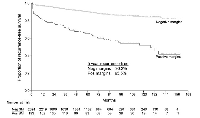 Figure 4: Prostate cancer recurrence after open radical prostatectomy stratified by surgical margin (SM) status.