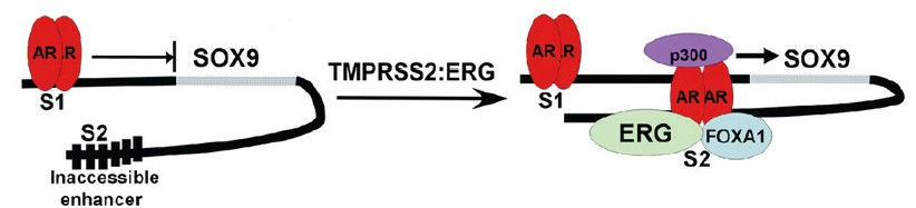 Figure 1: <i>ERG</i> opens cryptic AR regulated enhancer in human <i>SOX9</i> gene. In the absence of <i>ERG</i>, AR binds weakly to a site upstream of the <i>SOX9</i> gene (S1 site) and weakly suppresses <i>SOX9</i> expression. In <i>TMPRSS2:ERG</i> fusion positive tumors, ERG binds to a site downstream of the <i>SOX9</i> gene (S2 site). It then functions in conjunction with <i>FOXA1</i> as a pioneer transcription factor to open the site and reveal a cryptic AR-binding site, converting the site into an AR-regulated enhancer. The S1 site is highly conserved across species including mouse, but the S2 site is not conserved. AR: androgen receptor.