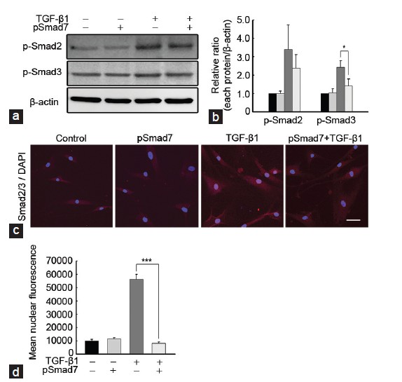 Figure 5: SMAD7 overexpression suppresses TGF-β1-induced SMAD2 and SMAD3 phosphorylation and nuclear translocation in fibroblasts derived from human Peyronie's disease plaque. Fibroblasts were transfected with an empty PEI25k/pCMV5 vector or a PEI25k/pCMV5-Smad7 polyplex (pSmad7) for 48 h and were then treated with TGF-β1 (10 ng ml−1) for 1 h. (a) A representative Western blot for P-Smad2, P-Smad3, and total SMAD2/3. Whole-cell extracts were fractionated in a sodium dodecylsulfate-polyacrylamide gel. (b) Data are presented as the ratio of phosphorylated protein to total protein. The relative ratio measured in the no treatment group was arbitrary presented as 1. Each bar depicts the mean values (± s.e.) from four experiments per group. *<i>P</i> < 0.05 by ANOVA. (c) Representative fluorescent immunocytochemistry of primary human fibroblasts with antibody against total SMAD2/3. Nuclei were labeled with the DNA dye DAPI. Schale bar = 25 ìm. (d) Nuclear fluorescence intensity was quantified for all cells. Each bar depicts the mean values (± s.e.) from four experiments per group. ***<i>P</i> < 0.001 by Kruskal-Wallis tests. PEI: poly (ethyleneimine); TGF-β1: transforming growth factor-β1; SMAD7: decapentaplegic homolog 7; P-Smad2: phospho-Smad2; DAPI: 4,6-diamidino-2-phenylindole; s.e.: standard error.