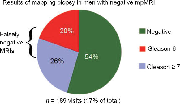 Targeted Prostate Biopsy Using Magnetic Resonance Imaging