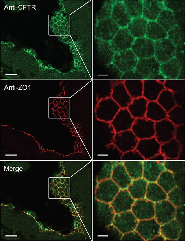 Regulation Of Epithelial Function Differentiation And Remodeling