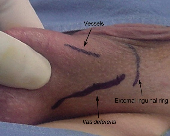 Antegrade scrotal sclerotherapy of internal spermatic veins