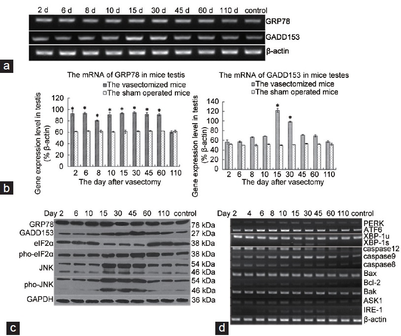 Figure 4: Vasectomy induces apoptosis and ER stress responses. (a) The expression levels of GRP78 and GADD153 mRNA in vasectomized and control mice was determined by RT-PCR. (b) Quantification of GRP78 and GADD153 mRNA in vasectomized and control mice relative to β-actin. Control, one representative of sham-operated control (note that sham-operated controls at each time point postvasectomy had the same expression level for each HSP110 gene). *Statistically significant difference for vasectomy versus sham operation of the same day (<i>P</i> < 0.05). (c) The testes extracts were analyzed for phosphorylation of JNK and eIF2α, expression of GADD153 and GRP78 by Western blot analysis using antibodies against phospho-JNK, total JNK, phospho-eIF2α, total eIF2α, GADD153, GRP78, and GAPDH. (d) The level of ER stress sensors and downstream signaling components mRNA in the mouse testis after vasectomy was determined by RT-PCR.
