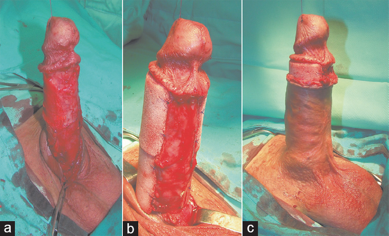 Figure 1: Repeated penile girth enhancement using biodegradable scaffolds,  with biopsy of previously formed tissue. (a) Penile skin is dissected  carefully.