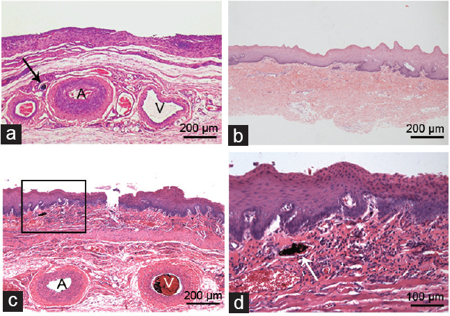 Figure 2:Representative histology of the capsule (a), buccal mucosa graft (b), and (c) the prefabricated capsule buccal mucosa composite flap; (d) Indian ink perfused vessels were observed in the submucosa layer of the composite flap. A: artery; V: vein; Arrows: India ink perfused vessels.